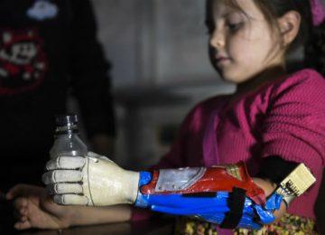 protesis 3d en colombia 360x260 - Niños superhéroes en Colombia gracias a prótesis de impresión 3D