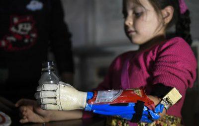 protesis 3d en colombia - Niños superhéroes en Colombia gracias a prótesis de impresión 3D