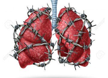 49008489 dolor de pulm n concepto m dico como un par de pulmones humanos de rganos envuelto con p as peligros Foto de archivo 360x260 - Alivio del dolor, un derecho humano