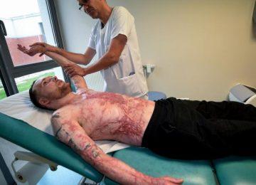 5a178a0ef0cc3 360x260 - Trasplantan piel de hombre con el 95 % de su cuerpo quemado