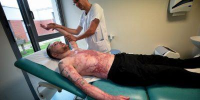 5a178a0ef0cc3 - Trasplantan piel de hombre con el 95 % de su cuerpo quemado