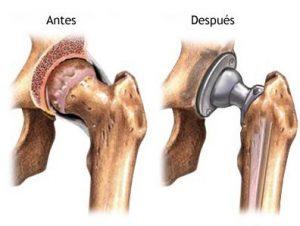 prótesis de cadera convencional 300x226 - Así es la vida con un trasplante de cadera