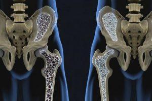 sufren invalidez tres de cada 10 personas con fractura de cadera 696x462 300x199 - Así es la vida con un trasplante de cadera