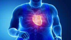 """obesidad corazc3b3n 300x169 - """"La Salud es prevenir la enfermedad antes que tener que dedicar todos los esfuerzos a curarla"""": William Ospina"""